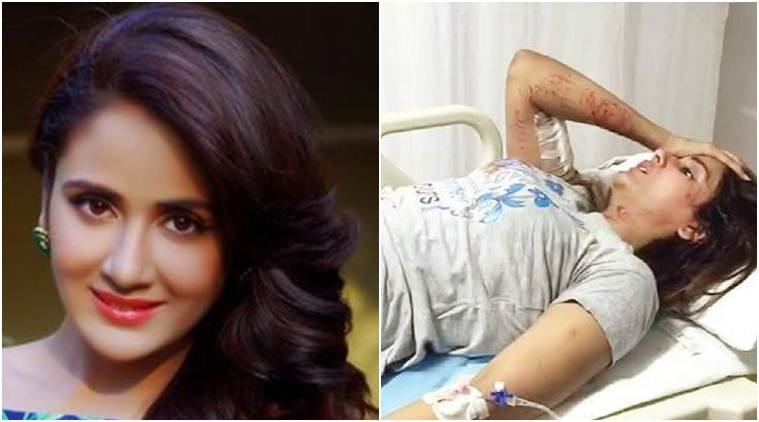 Indian Actress Parul Yadav under Dogs Attack
